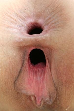 Free Mature Anal Gape Sex Pics